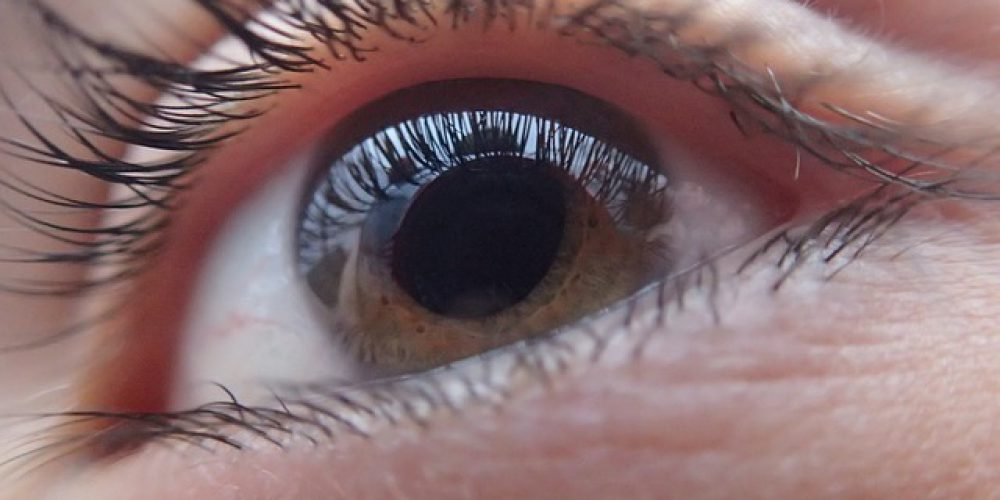 Glokom Nasıl Bir Göz Hastalığıdır?